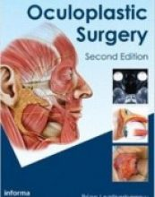 Oculoplastic Surgery 2nd Edition
